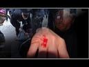 Staats und Medien Gewalt gegen Omis – aber auf dem linken Auge blind? D ENG