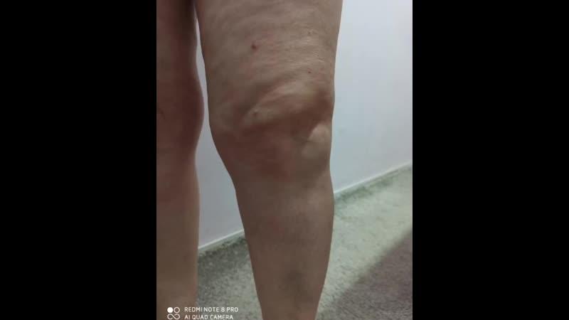 тейпирование колена при артрозе www.massag-lfk.ru