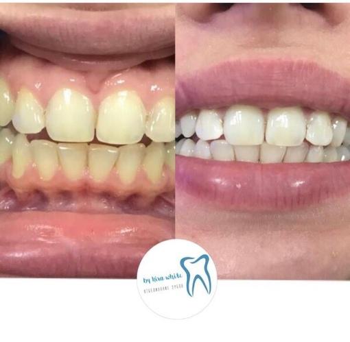 Приглашаю моделей на профессиональное отбеливание зубов .