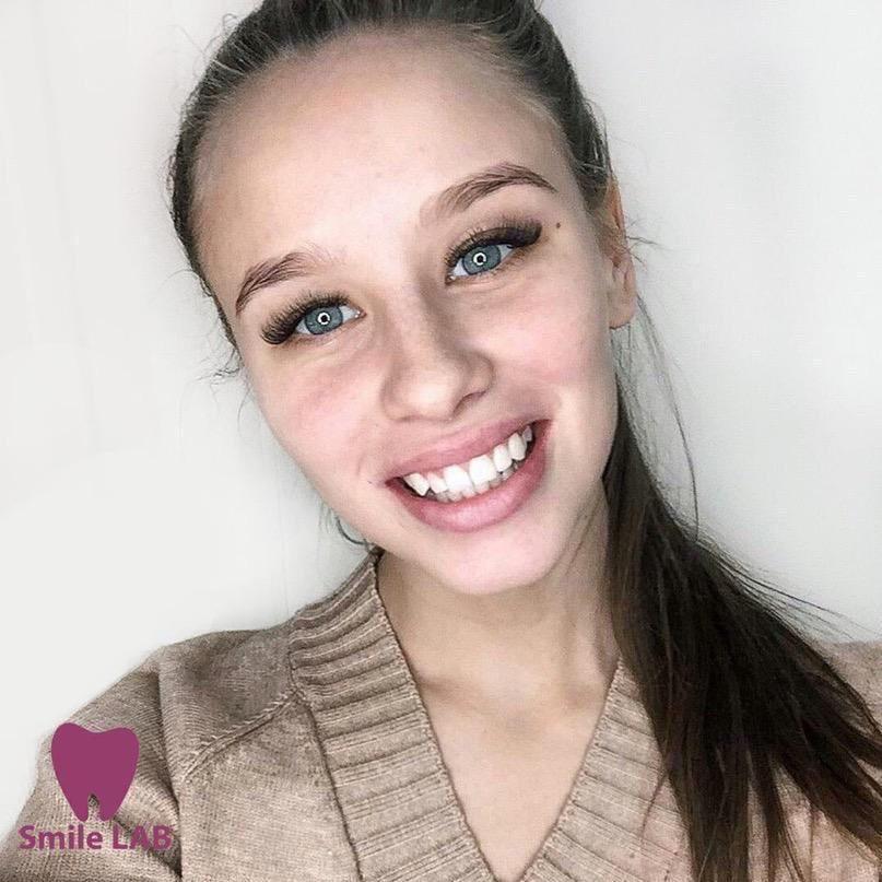 Приглашаем моделей на косметическое отбеливание зубов !