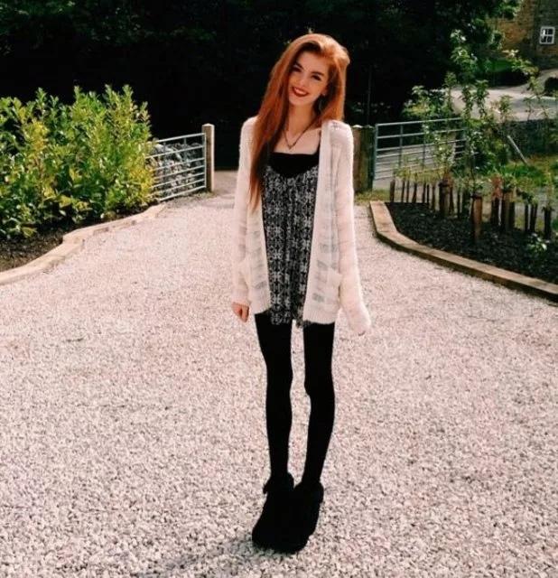 21-летняя Анна Уиндли весила всего 29 кг, но смогла победить анорексию.