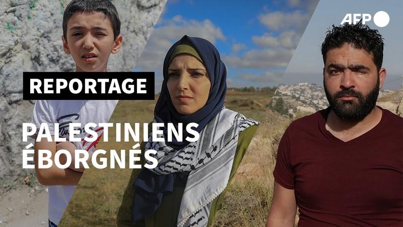 Palestiniens éborgnés en manif, les yeux grands blessés   AFP
