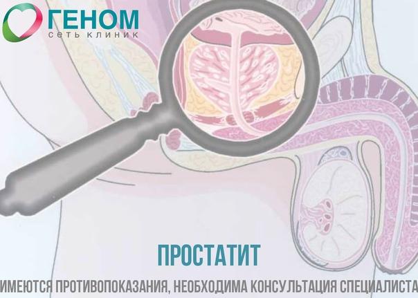 Жизнь с простатит лучший препарат при лечении простатита