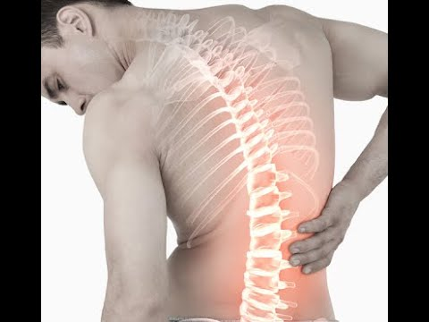 Боль в пояснице Костоправ избавил от многолетней боли в пояснице Chiropractic