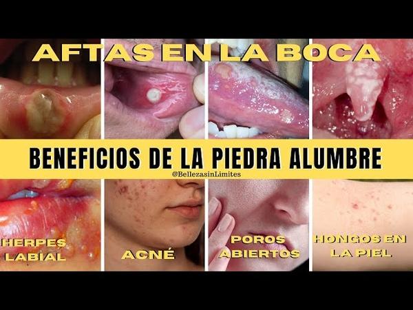Herpes Labial 🦠 Aftas 👾 Acne 😢 Poros Abiertos 🦠 Hongos en la Piel 👉 Beneficios de la Piedra Alumbre